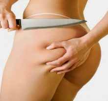 Get Rid of Your Cellulite Faster